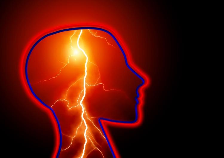 epilepsy-623346.jpg
